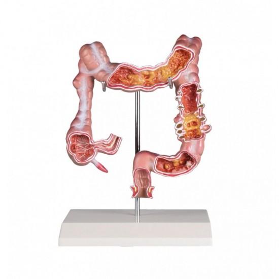 Анатомичен модел на дебело черво с патологии