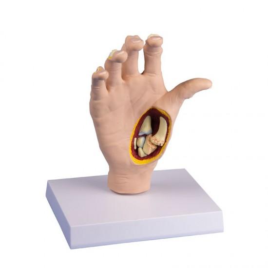 Анатомичен модел на длан с остеоартрит
