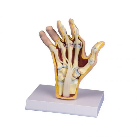 Анатомичен модел на длан с ревматоиден артрит