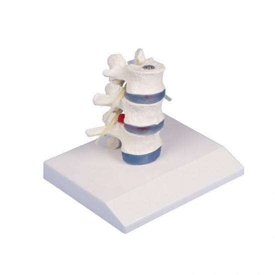 Анатомичен модел на гръбначен стълб с дисков пролапс