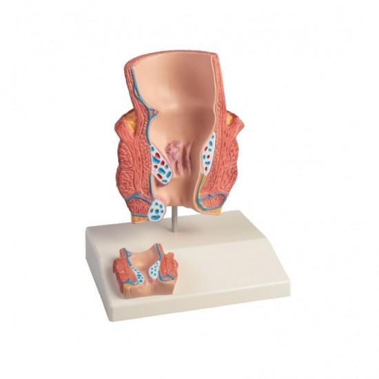 Анатомичен модел на хемороиди