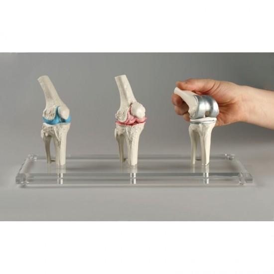 Анатомичен модел на имплант на колянна става