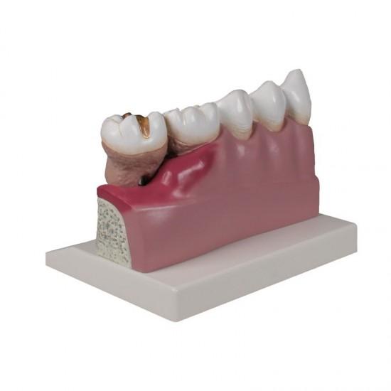Анатомичен модел на зъб