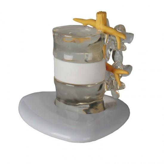 Анатомичен модел - Симулатор на херниален диск