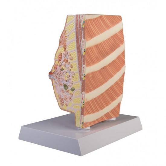 Анатомичен модел на млечна жлеза с патологии